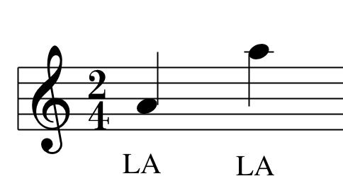 La posizione dei LA